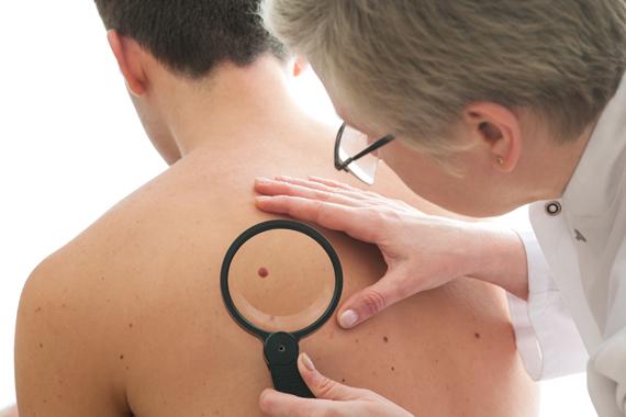 Cancer-de-la-peau