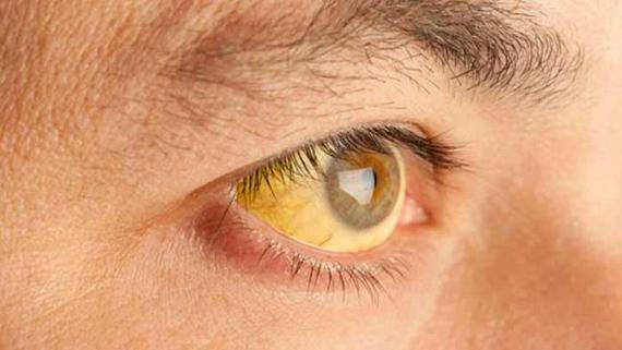 jaundiced-eyes